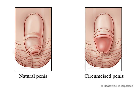 Small pimples on the head of the penis