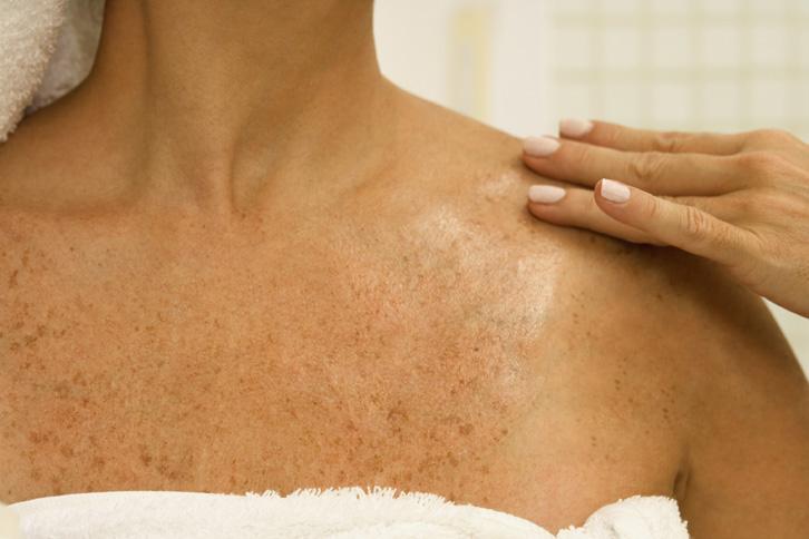 woman brown spots sun damage