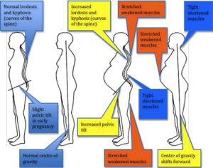 pregnancy lordosis picture
