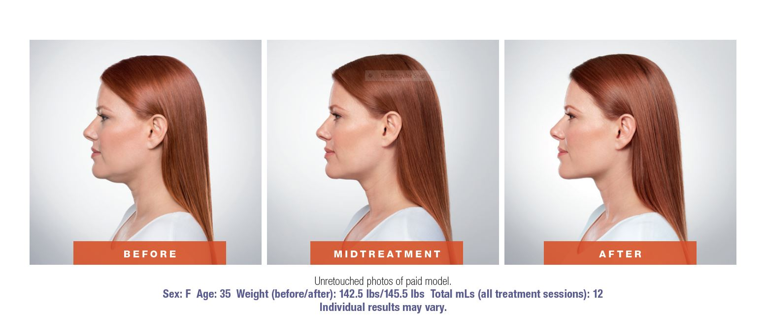 kybella before-after