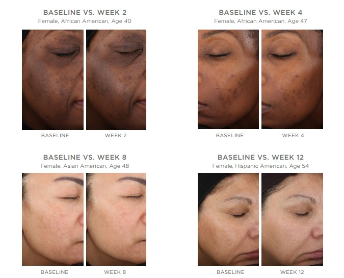 Treatment for facial discoloration